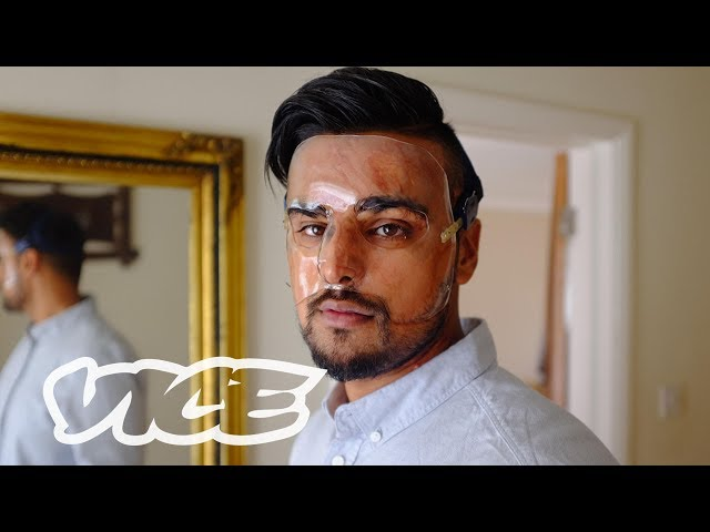 The Rise of Acid Attacks in the UK VICE Reports