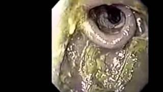Чистка кишечника щелочной водой