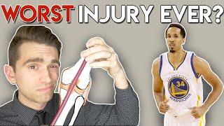 WORST NBA Injury EVER? Doctor Explains Shaun Livingston Injury
