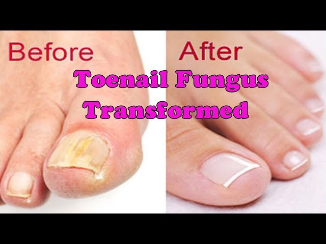 Toenail Fungus Transformed into Pretty nail | Toenail pedicure tutorial - November 2017