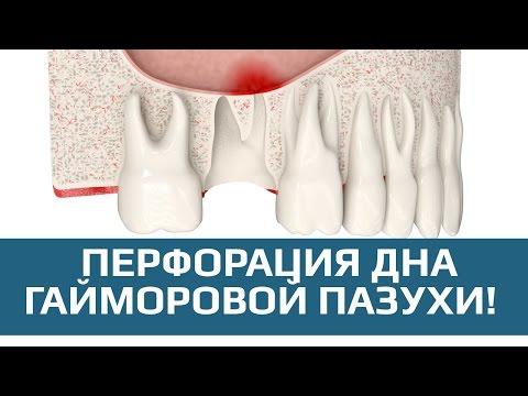 0 - Перфорація гайморової пазухи: причини, лікування і можливі наслідки