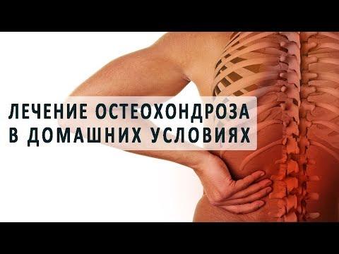 Лечение остеохондроза в грудном отделе в домашних  17