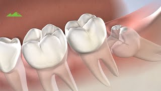 Post Operative Instructions: Wisdom Teeth Extractions - Utah Surgical Arts | Provo UT