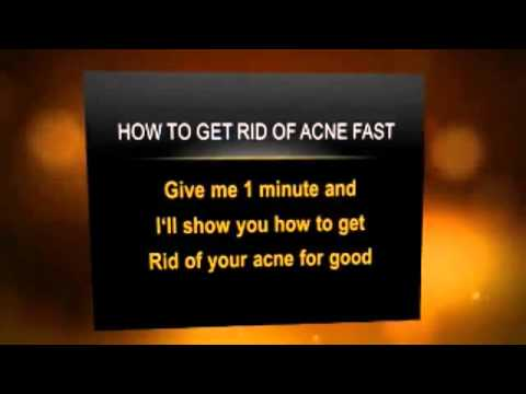 Homemade Remedies For Acne - Cure Your Acne At Home