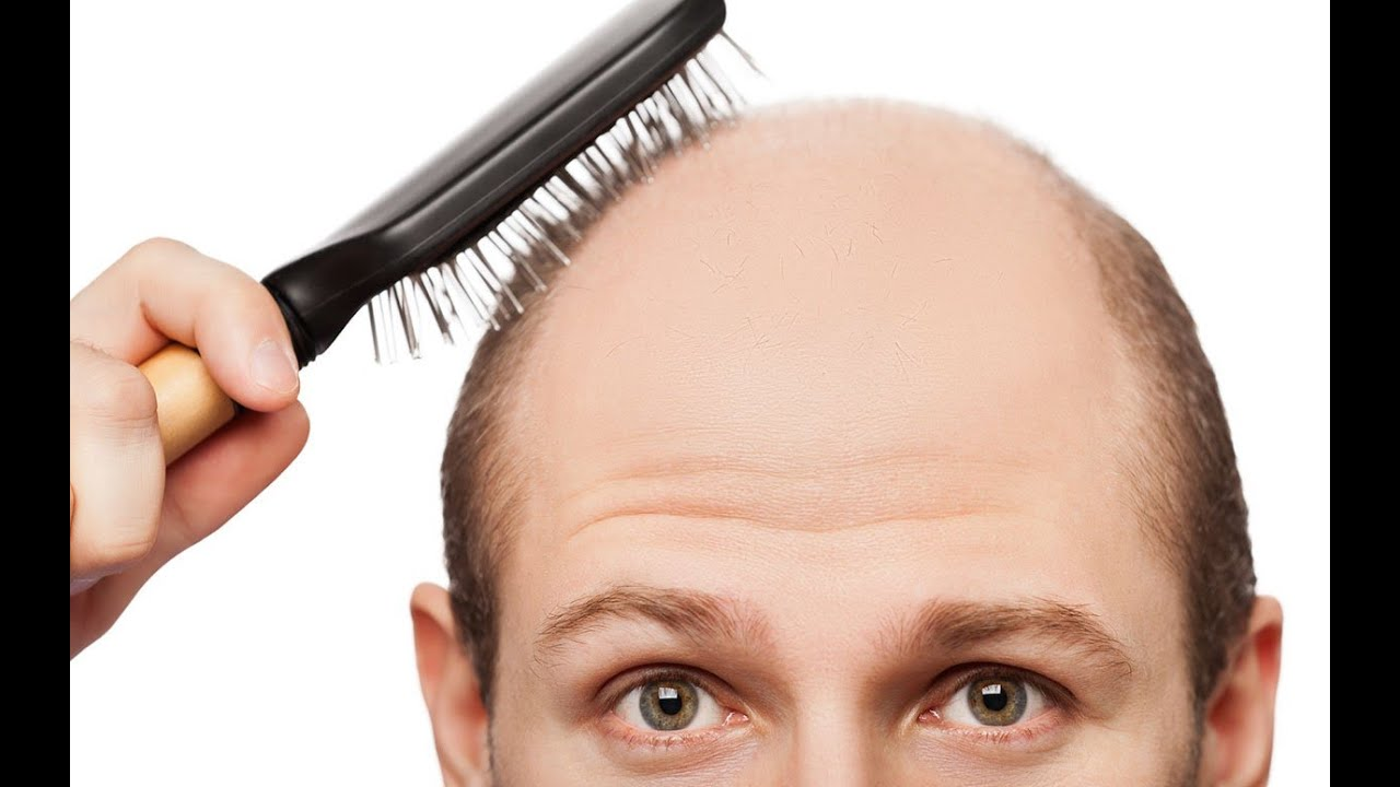 Signs of baldness pictures Leprosy Pictures, Symptoms, Causes Treatment