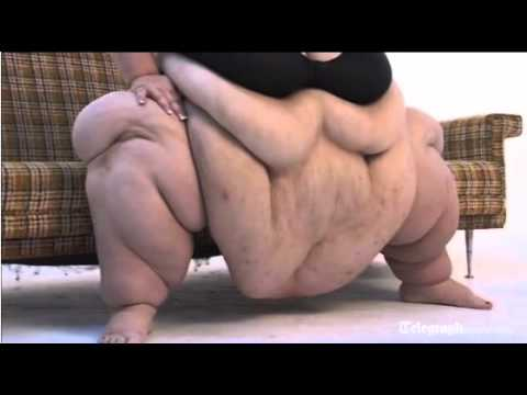 World's Fattest Woman - 728 lbs - Susanne Eman