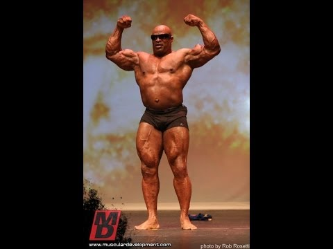Does Ronnie Coleman Have Palumboism ? Who Else ??? video