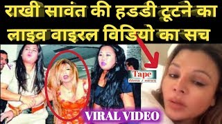 Rakhi Sawant Viral Video | See the truth of the live viral video of Rakhi Sawant's broken bone