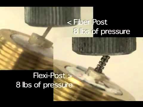 Metal vs  Dowl Fiber Posts