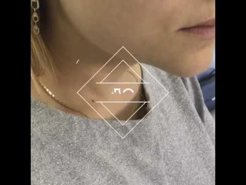 Увеличение губ .Без синяков! Техника двух вколов! Dr.Shinder