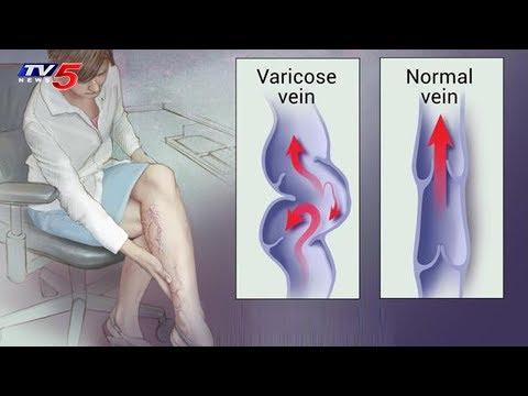 Varicose Veins Symptoms & Treatments | Homeocare International Hospitals | Good Health | TV5