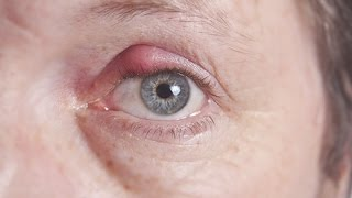 How to treat boils and styes