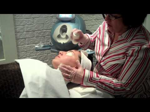 Acne Treatment with Isolaz at Clarity Med Spa & Laser Centre  Toronto Ontario