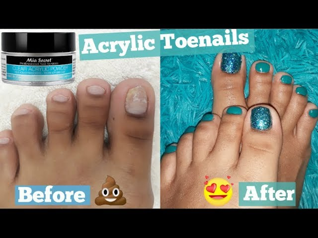 FOOT TRANSFORMATION !How I extend my short Toenails using Acrylic without TIP !! [ PEDICURE at Home]