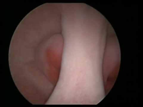 Art of vaginoscopy by osama shawki, septum vagina, cx and uterus thumbnail