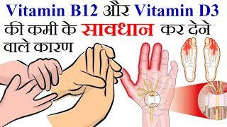 Vitamin B12 और D3 की कमी के चौकान देने वाले कारण | Numbness in Arms, Hands and Feet Reason in Hindi