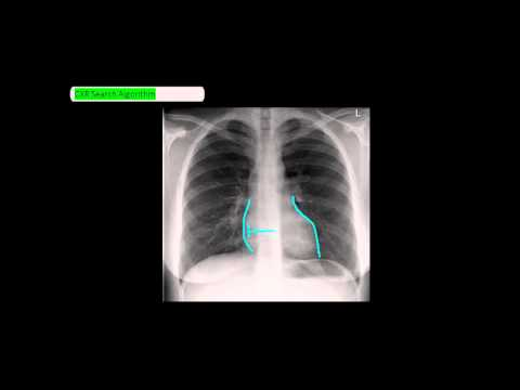 Chest X-Ray Reading Method - ABCDE [UndergroundMed]