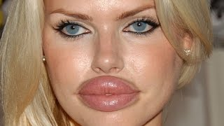 Worst Plastic Surgeries Ever!
