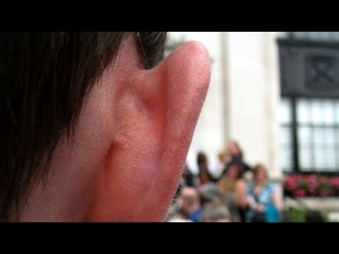 How to Prevent an Ear Infection   Ear Problems