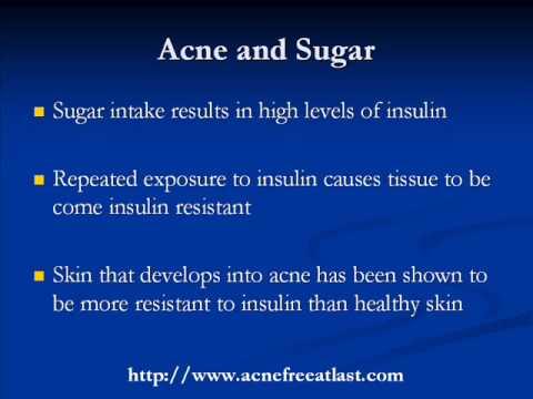 Acne Skin Care Nutrition - Sugar & Antioxidants