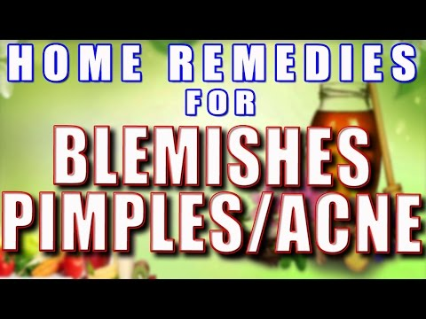 Home Remedies for Blemishes/Pimples/Acne