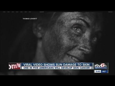 Video: UV camera shows harsh realities of sun damage