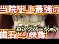 当院史上最強の歯石とりVery heavy tartar removal [Long] 歯石除去Vol.3.1(我院有史以來最厲害的去牙石)