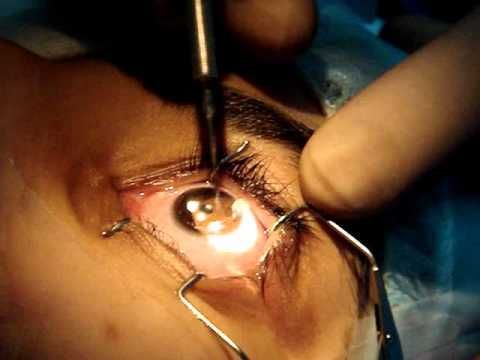 عمليات جراحة العيون