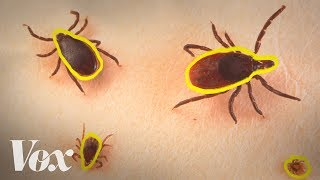 Lyme disease is spreading. Blame ticks — and climate change