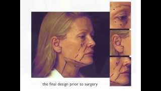 A Facelift Diary