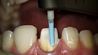 Finishing tooth preparation