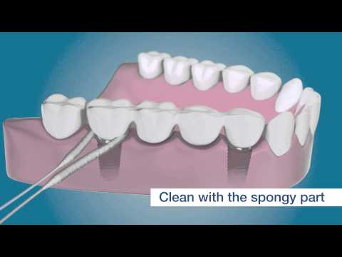Clean around your dental implants with TePe Bridge & Implant Floss