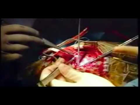 Cirurgia para tumor cerebral (HD) Music Videos