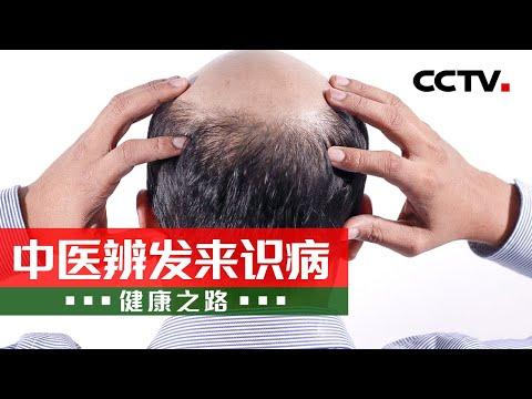 中國-健康之路-20211018 中醫辨發來識病