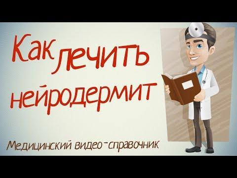 Нейродермит лечение. Как лечить нейродермит народными средствами.