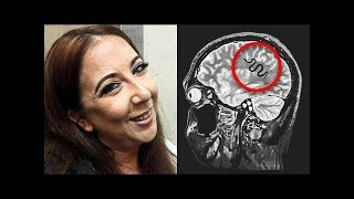 When a Brain Scan Showed What Was Behind Her Headaches, Doctors Began an Incredible Treatment