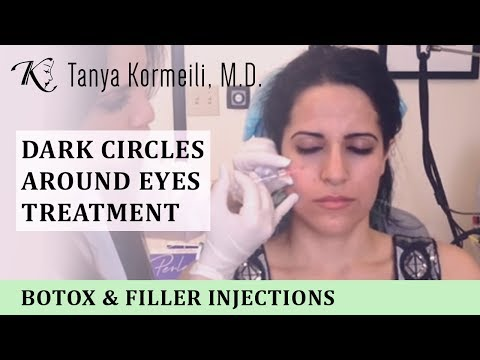 (Dark Circles Around Eyes Treatment)  (Black Under Eyes Treatments)  (Under Eyes Wrinkles)