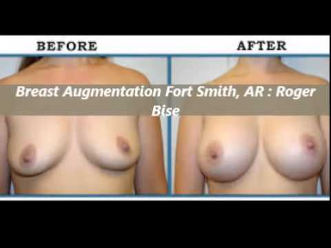 Best Breast Augmentation Surgeon in North Little Rock, Fort Smith, Hot Springs, Jonesboro