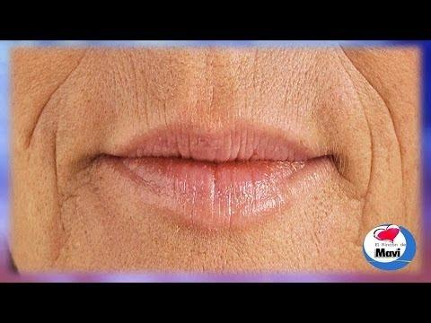 Remedios caseros para las arrugas alrededor de la boca   Tratamientos faciales naturales