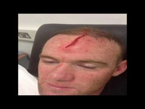 Wayne Rooney head injury by Phil Jones - England National team training