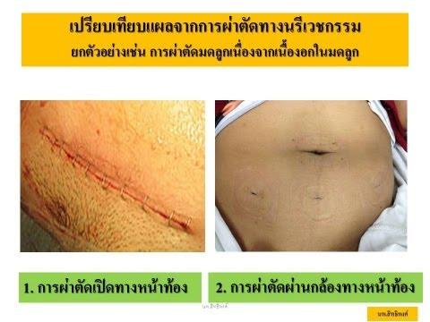 การผ่าตัดมดลูกผ่านกล้อง (LAVH) by หมอโจ นพ.สิทธิพงศ์