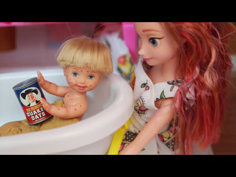 AllToyCollector Disney Princess Anna Barbie Parody Frozen Toby Get the CHICKEN POX LPS