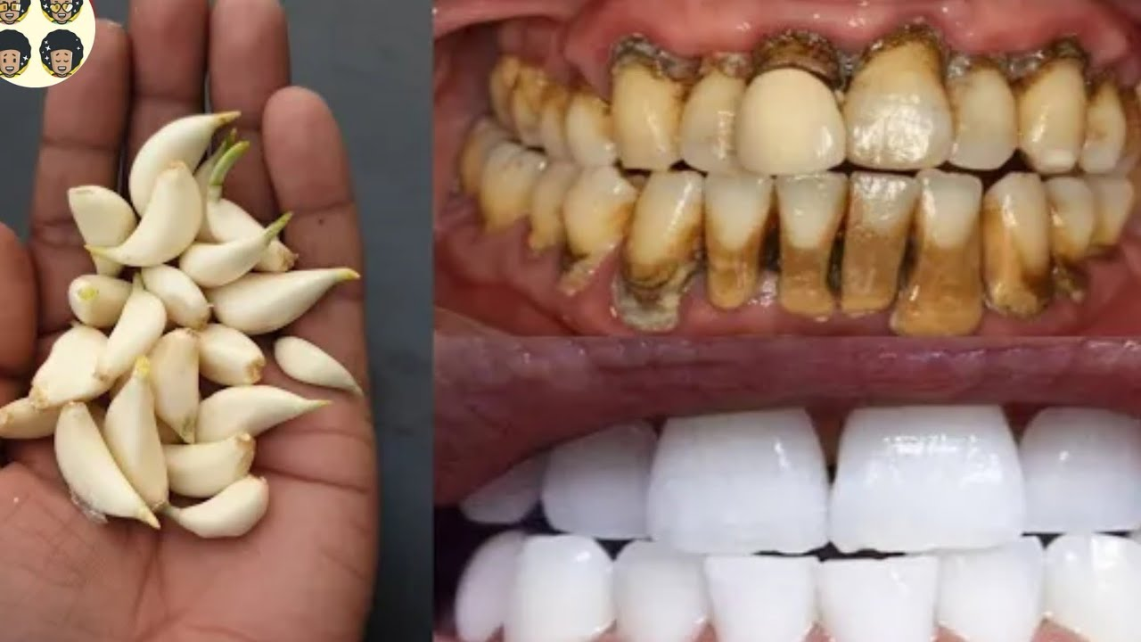 How to whitening teeth with 2 minutes at home