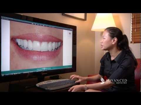 Advanced Dental Artistry Perth - Fixing