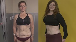 Woman Removes Loose Skin After Shedding 300 Pounds