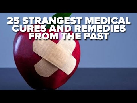 25 Strangest Medical Cures And Remedies From The Past