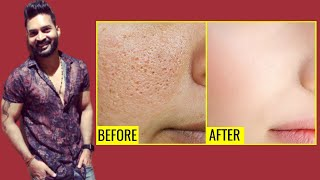 Reduce OPEN PORES NATURALLY. Diet Explained
