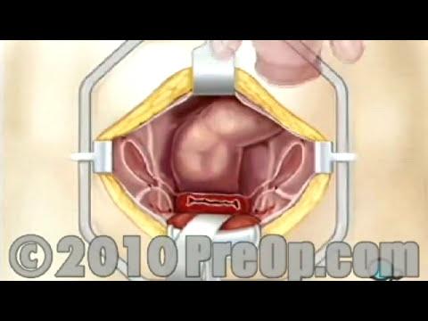 Histerectomía eliminación de útero, ovarios y trompas de falopio de Cirugía