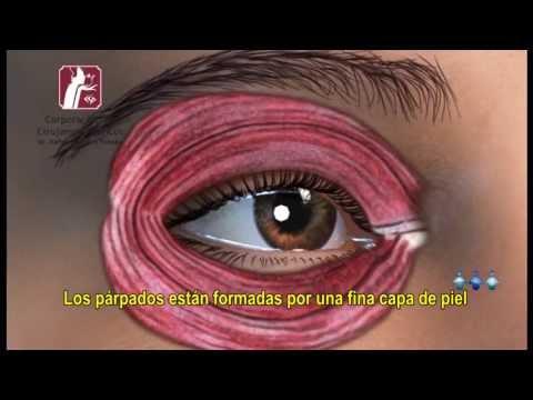 Blefaroplastia | Corporación de Cirujanos Plásticos | Lima - Perú