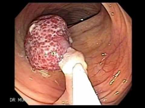 Endoscopy Polypectomy Of Polyp Of Descending Colon Youtube